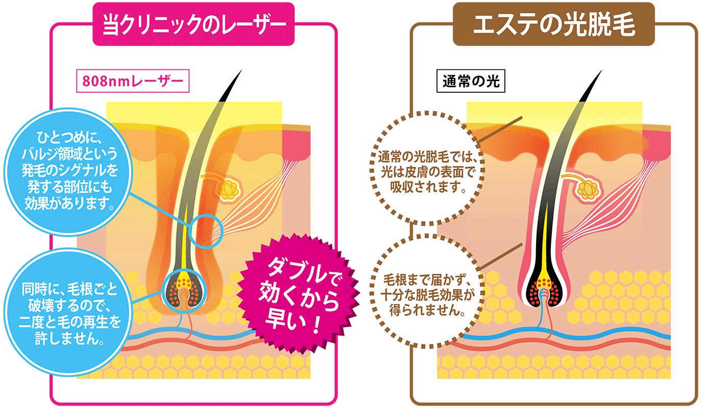 当クリニックのレーザーとエステの光脱毛の比較イメージ