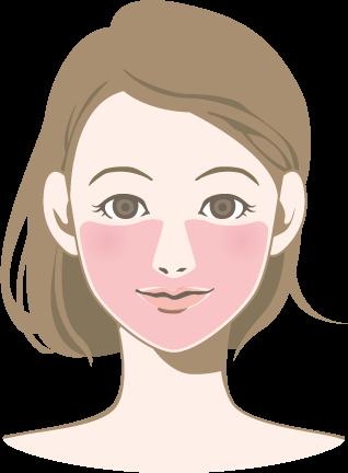 クララ美容皮膚科の顔脱毛照射可能パーツ